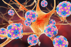 Human Parechoviruses affecting neuron Royalty Free Stock Photo