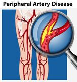 Human with Peripheral Artery Disease vector illustration