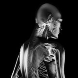 Human radiography scan Stock Photos