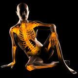 Human radiography scan. On black Stock Photos