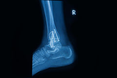 Human x-rays showing fracture of right leg stock image