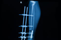 Human x-rays showing fracture of right leg stock photos