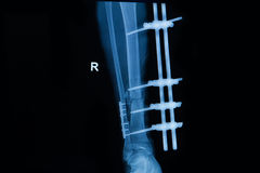 Human x-rays showing fracture of right leg royalty free stock photo