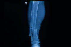 Human x-rays showing fracture of right leg stock photography
