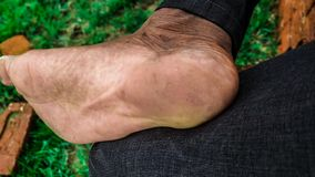 Human right foot hd image stock photo