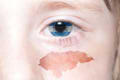 Human& x27;s face with national flag and map of honduras. Concept royalty free stock image