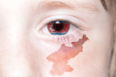 Human& x27;s face with national flag and map of north korea. Concept stock images