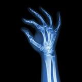 Human's hand and OK symbol. Film x-ray human's hand and OK symbol Stock Photography