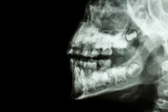 Human's jaw and teeth. Film x-ray human's jaw and teeth and blank area at left side Stock Photos