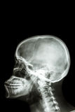 Human's skull and blank area at upper side for fill text Royalty Free Stock Photos