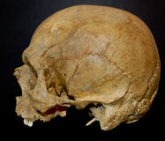 Human Skull. Side view of old jawless Human Skull isolated on dark backgroung Stock Photos