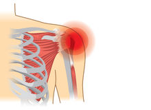 Human shoulder muscles and joints have a red signal. Royalty Free Stock Photography