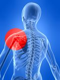Human shoulder with pain Stock Images