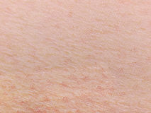 Human skin Stock Images