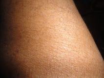 Human skin. Stock Image