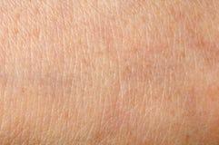 Human skin Stock Image