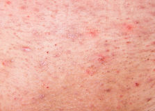 Human skin with acne. Acne on human skin close up Royalty Free Stock Photos