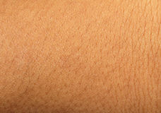 Human skin background Royalty Free Stock Photography
