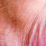 Human skin closeup background. Stock Photography