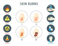 Human Skin Burns Infographic Card Poster. Vector. Human Skin Degree Burns Infographic Card Poster System Concept of Diagnostics and Health Care Flat Design Style Royalty Free Stock Photo