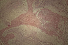 Human skin with squamous cell carcinoma Stock Photography
