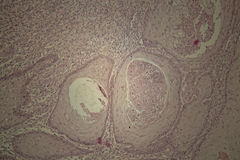 Human skin with squamous cell carcinoma Stock Photos