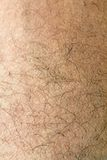 Human skin with strands of hair close up Stock Photo
