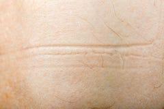 Human skin texture. Close up photo of human skin texture Stock Photo