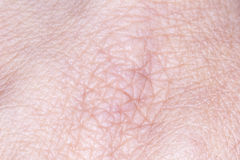 Human Skin Royalty Free Stock Photo