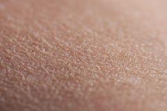 Human Skin Upper Arm royalty free stock photos