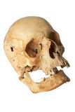 Human skull. With visible injuries Royalty Free Stock Images