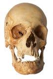 Human skull. With visible injuries Royalty Free Stock Photos