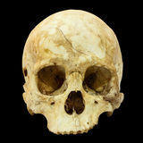 Human Skull Fracture (Mongoloid,Asian) Stock Photo