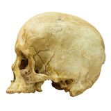 Human Skull Fracture (side) (Mongoloid,Asian) royalty free stock photo