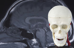 Human skull lodel on MRI background royalty free stock images