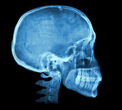 Human skull X-ray image. Isolated on black royalty free stock photography
