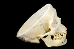 Human skull without skullcap, side view. Real human skull with hinged jaw and removable skullcap.  Side view Stock Image