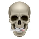 Human skull and syringe Royalty Free Stock Photo