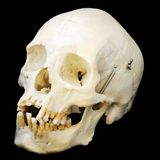 Human skull, three-quarters view Royalty Free Stock Photo