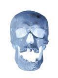Human skull x-ray Stock Photos