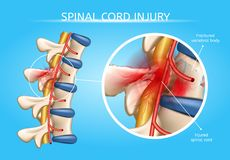 Human Spinal Cord Injury Anatomical Vector Scheme. Spinal Cord Injury Vector Medical Scheme with Magnification of Fractured Vertebral Body and Damaged with vector illustration