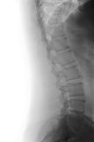 Human Spine Curve Stock Images