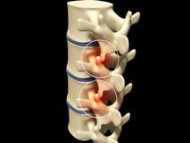 human spine Stock Photos
