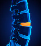 Human Spine Disc Degenerative. Illustration. 3D render stock illustration