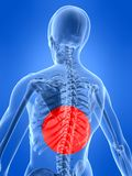 Human spine with pain Royalty Free Stock Images