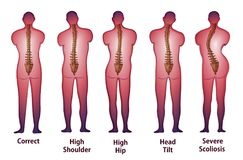 Human spine posture Back view.  Stock Photography