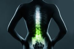 Human spine in x-ray, on gray background royalty free stock photo