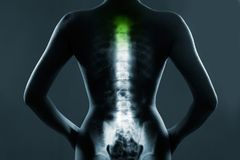 Human spine in x-ray, on gray background. The neck spine is highlighted by green colour royalty free stock images