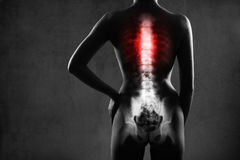 Human spine in x-ray, on gray background. Stock Images