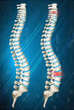 Human spines with red inflamed on one Royalty Free Stock Image